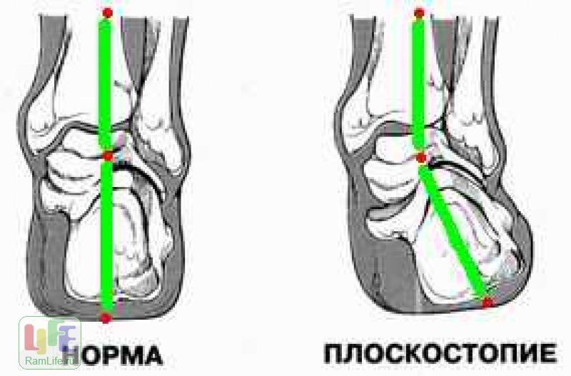 Вальгусная позиция пяточной кости как лечить